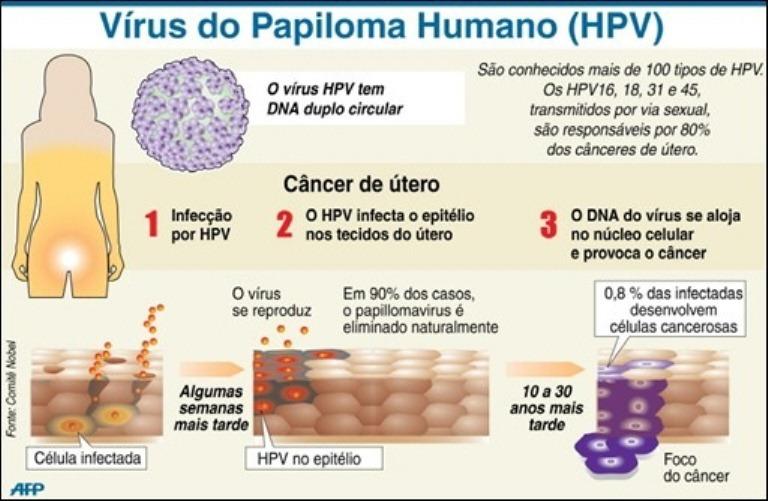 Resultado de imagem para hpv